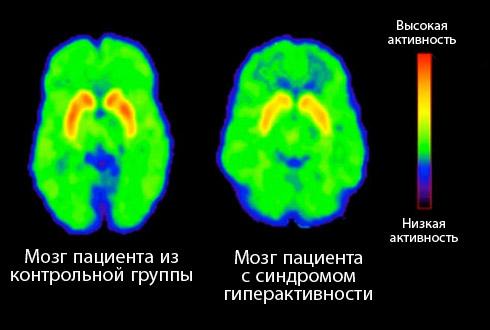 Изменения в мозгу