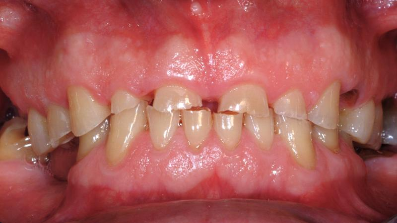 Стертые зубки