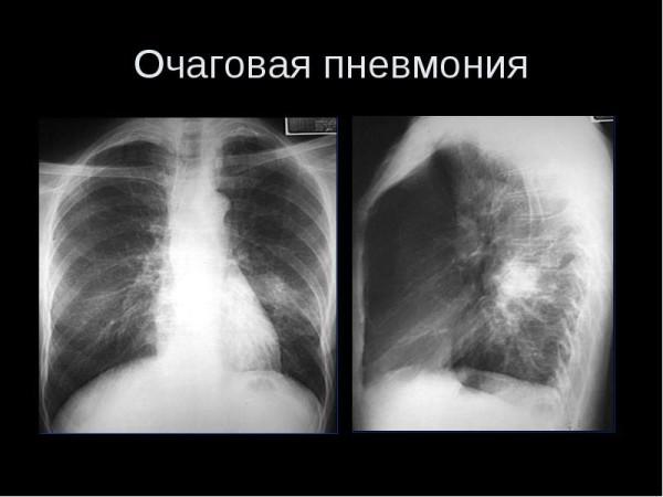 Очаговая пневмония на рентгене