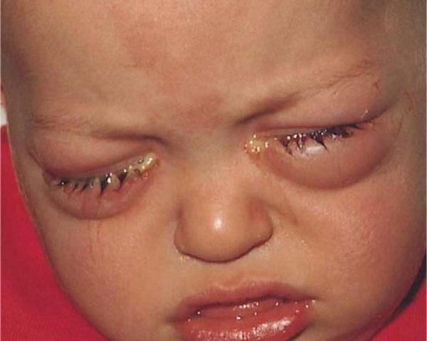 Бактериальный конъюнктивит у ребенка