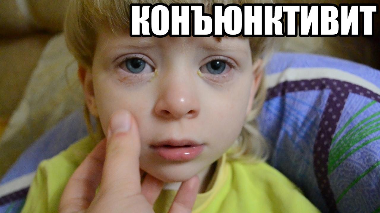 Конъюнктивит у детей лечение симптомы признаки лечение в домашних условиях виды конъюнктивита
