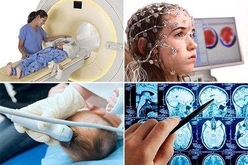 Диагностические методы при сотрясении мозга