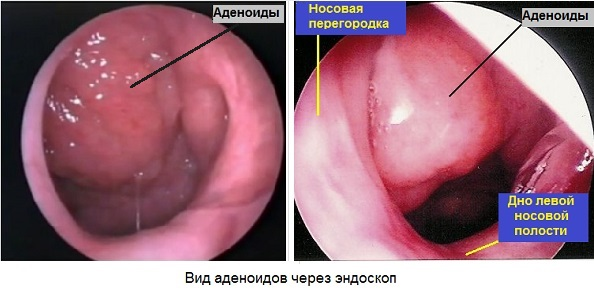 Аденоиды в эндоскопе - вид