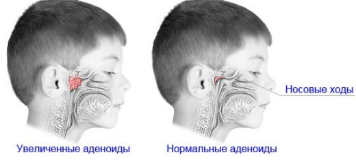 Аденоиды у детей: основные симптомы и способы лечения