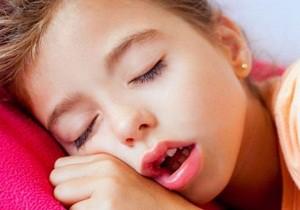 Сон с открытым ртом - симптом увеличенных аденоидов