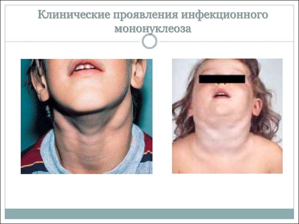 температура после мононуклеоза