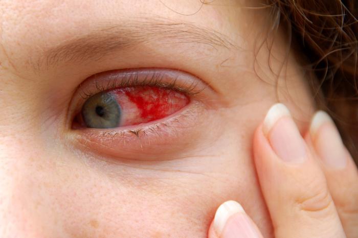 Осложнения ИМ - кровоизлияния