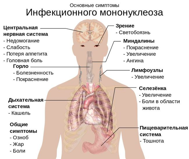 Симптомы ИМ у ребенка