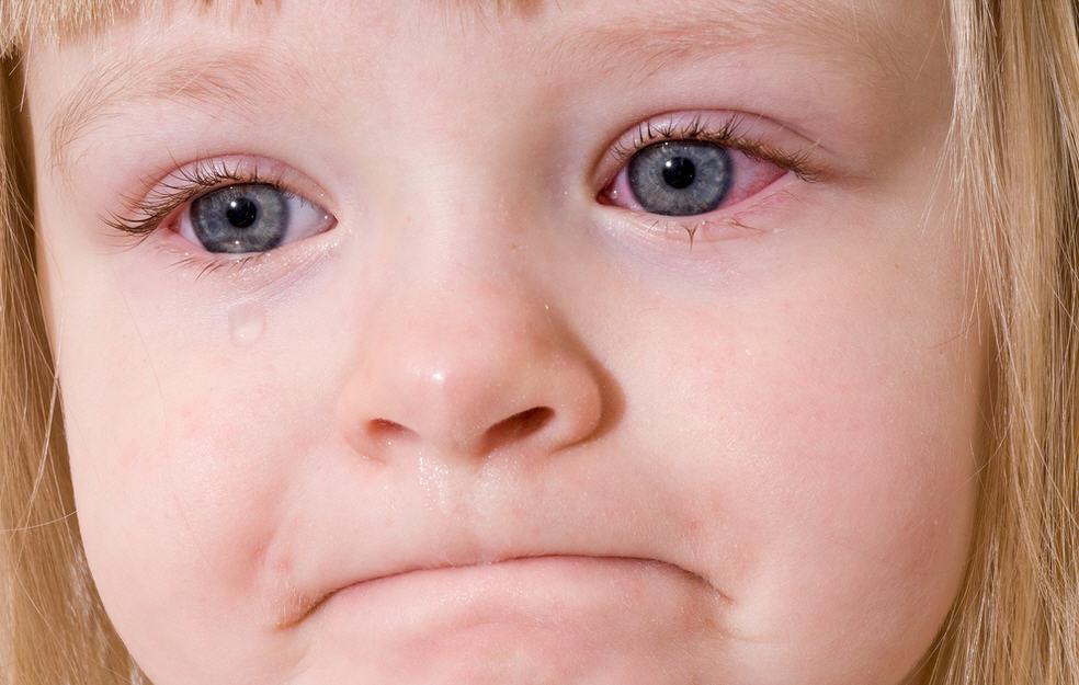 Кровоизлияния в глаза при коклюше