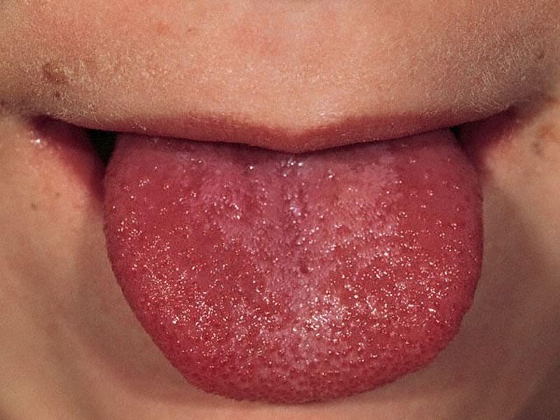 Язык при скарлатине