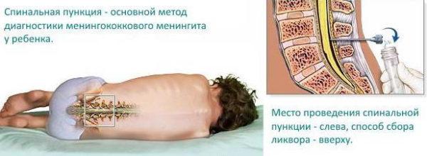 Диагностика - люмбальная пункция