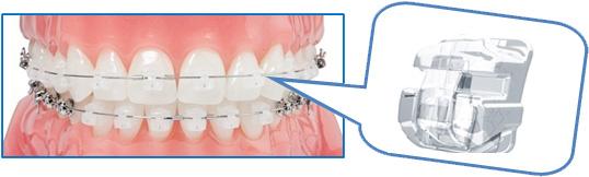 Исправление кривизны зубов ортодонтическими скобами (брекетами)
