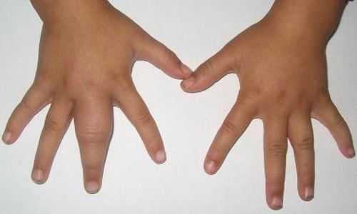 Ребенок прищемил палец