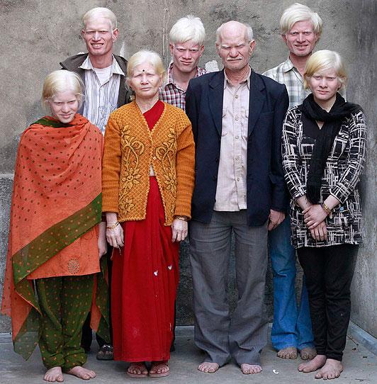 Самая необычная многодетная семья, в которой все альбиносы