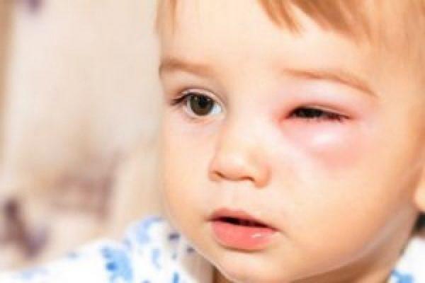 Выскочил ячмень у ребенка: плевать в глаз не надо, хотя и помогает
