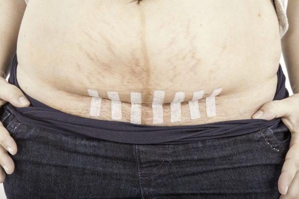 3 эффективных шага, позволяющих быстро убрать живот после кесарева сечения