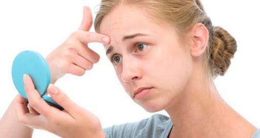 Подростковые прыщи - как пережить сложный гормональный период с наименьшими психологическими проблемами