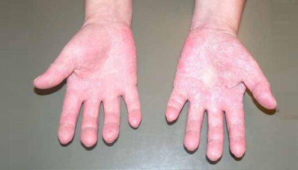 Что делать, если у ребенка обнаружилась аллергия на холод
