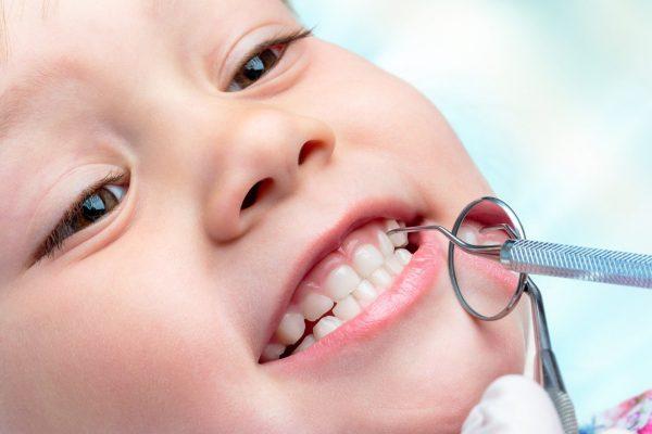 Лечение молочных зубов