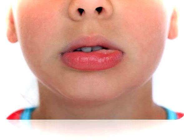 Ребёнок кусает губы