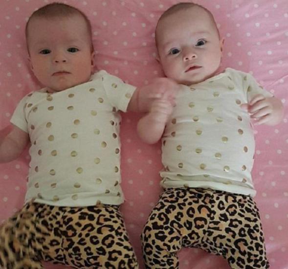 близнецы разные по росту