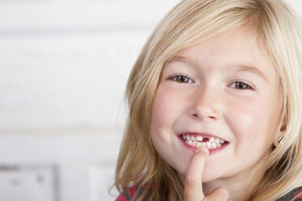 Выпал зуб у девочки