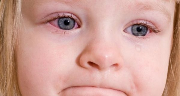 Conjunctivitis in a child
