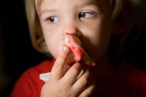 The boy has a nosebleed