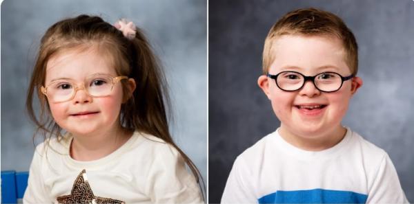 Дети с синдромом Дауна. Фото ВВС