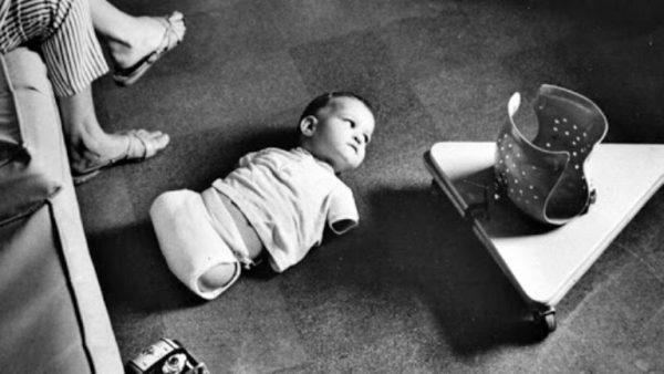 Ребенок с фокомелией