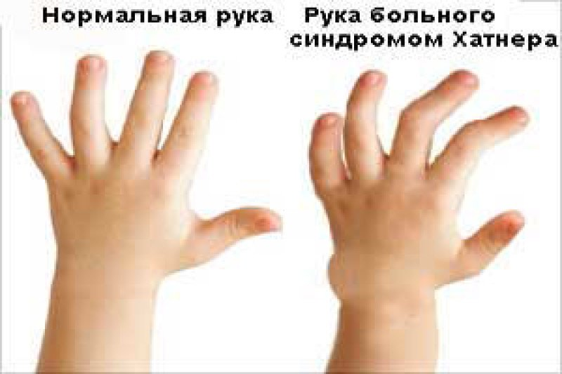 What is Hunter Syndrome