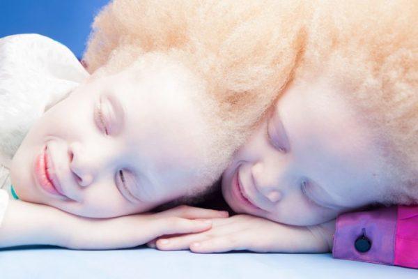 Лара и Мара Бавар из Бразилии - альбиносы