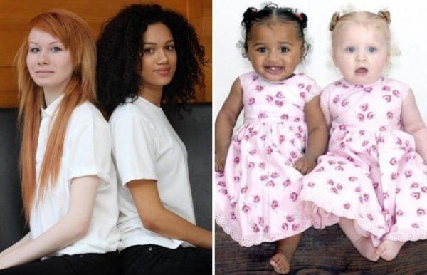 Близнецы с разным цветом кожи